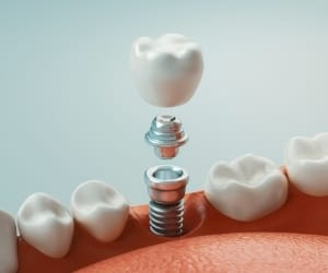 Animated immediate dental implant placement procedure