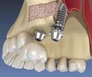 Animated dental implant placement after sinus lift