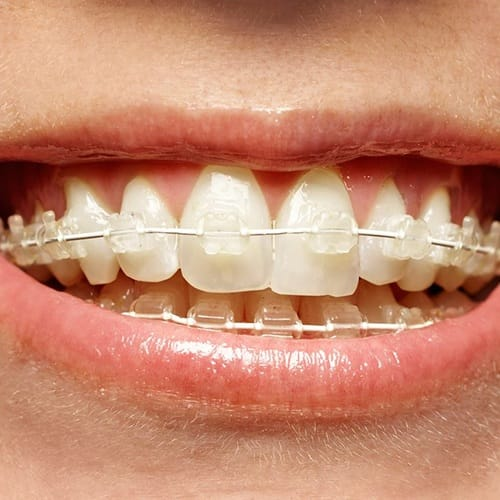 Closeup of teeth with Six Month Smiles braces